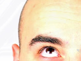 Hair Styles Online NeoGraft hair restoration system Photo 7